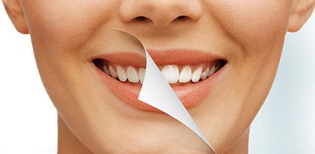 teeth whitening kellyville